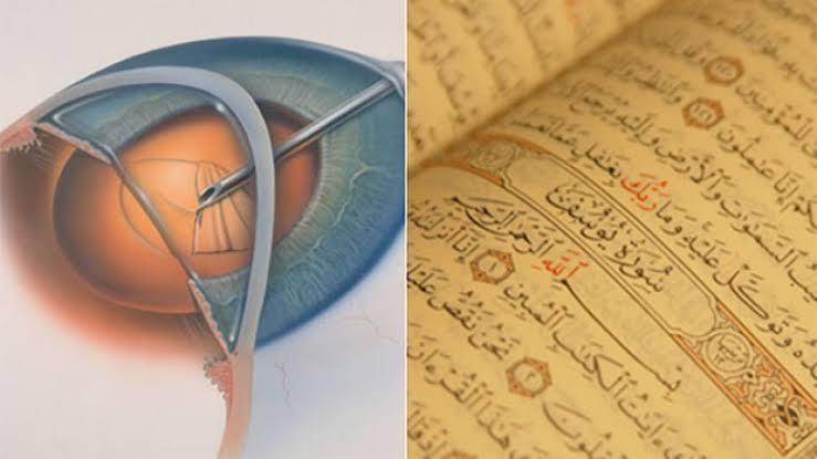 حیرت انگیزانکشاف، قرآن پاک سے موتیے کا علاج دریافت کرلیا گیا